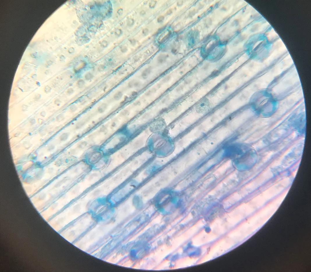 Observación de la epidermis vegetal del puerro